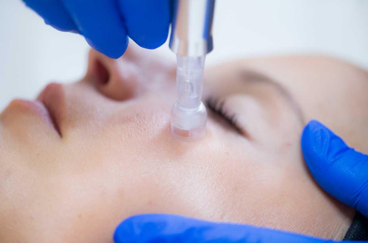 eDermastamp ansigtsbehandling beautysolution